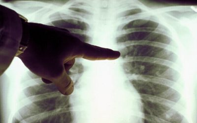 How Asbestos Effects Your Body