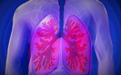 What Is Asbestosis? Symptoms, Treatment, and Prevention.